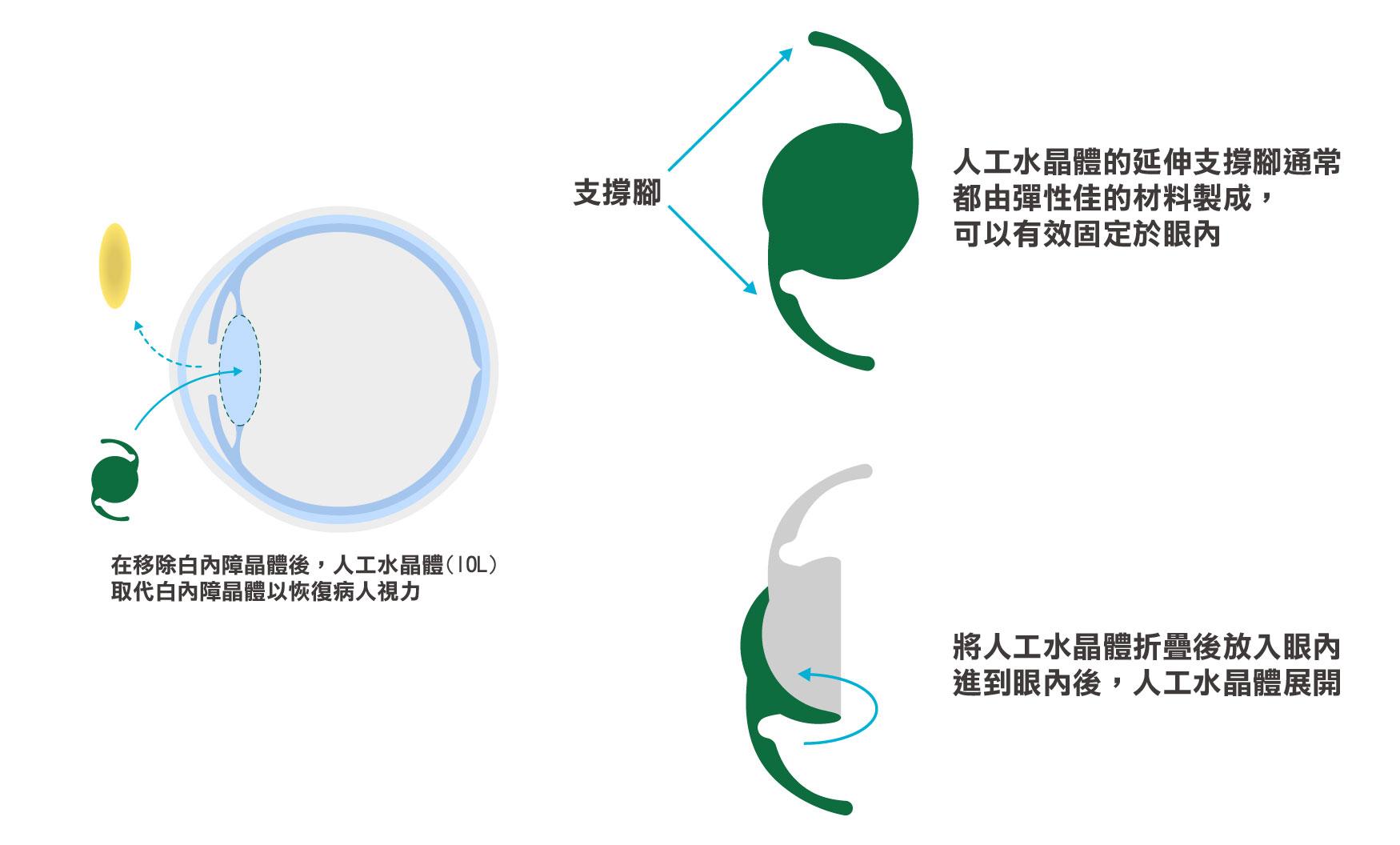 白內障手術期間 ,人工晶狀體如何替換自然水晶體