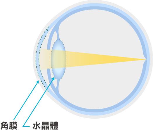 正常水晶體與白內障混濁的圖