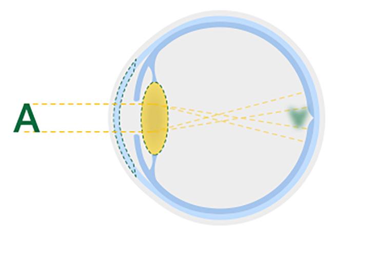 眼白內障混濁鏡的圖