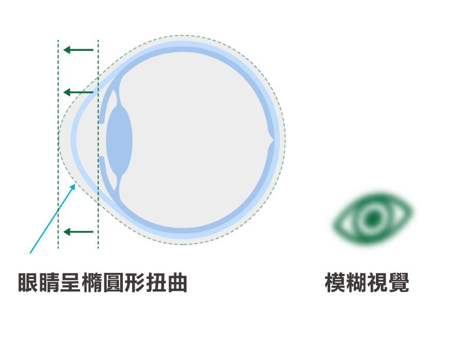 散光眼球形狀圖